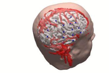 cervello-r400.jpg