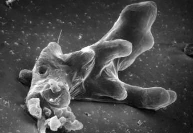 Un'ameba al microscopio