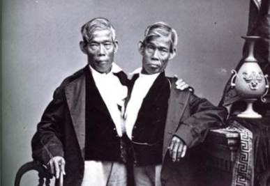 I gemelli Bunker, da cui il nome di gemelli siamesi
