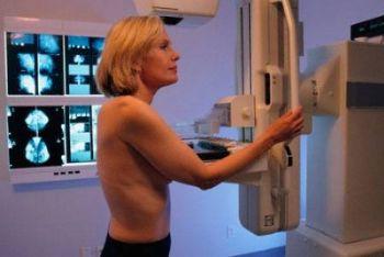 Procedura di controllo tumorale al seno