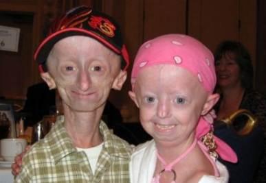 Due bambini colpiti dalla sindrome di Progeria