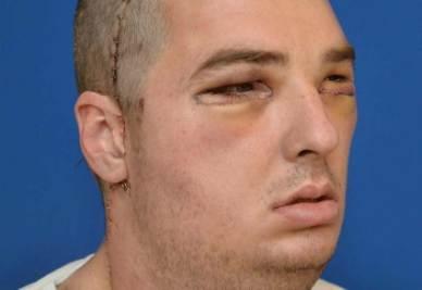 Richard Norris dopo l'operazione (InfoPhoto)
