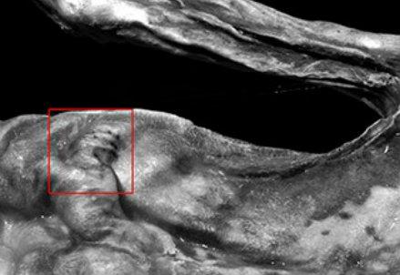 I Tatuaggi sul corpo di Ötzi