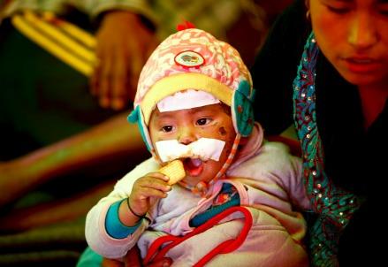 Un bambino ferito (Infophoto)