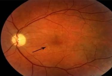 eye-worm-630-r375.jpg