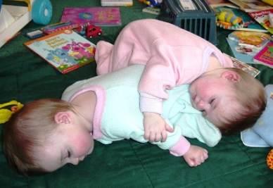 Due gemelli monozigoti