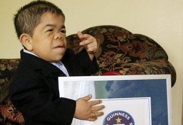 Hernandez, l'uomo più basso del mondo, foto Ansa