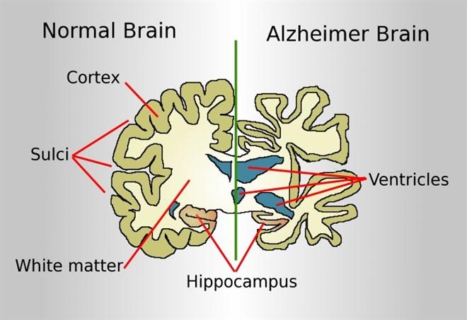 Il cervello dei malati di Alzheimer (Foto Wikimedia)