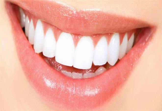 Denti bianchi (web)