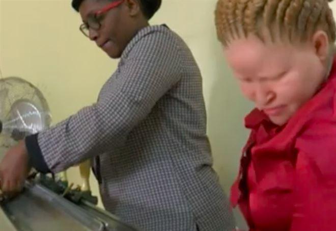 La storia di Mariam, albina mutilata in Tanzania (foto BBC)