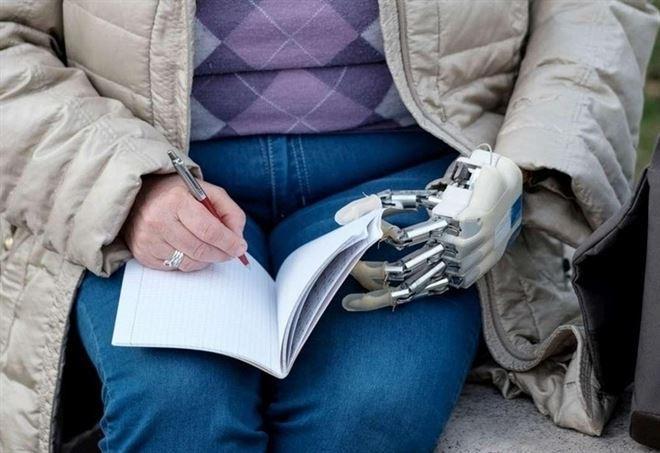 Almerina Mascarello con la sua nuova mano (LaPresse)