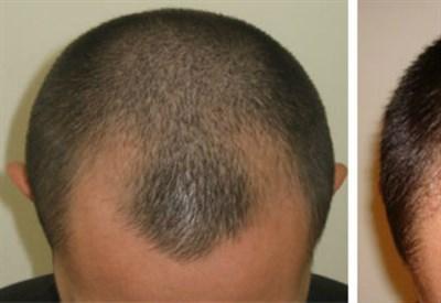 La maschera più efficace contro perdita e crescita di capelli