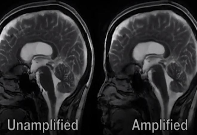 Cervello 'batte' come il cuore