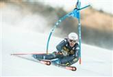 NADIA FANCHINI / Instagram, la foto della ferita choc della sciatrice
