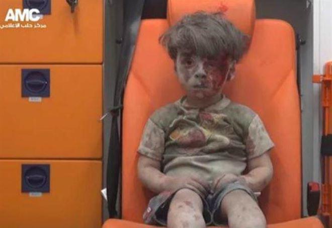 Nuove immagini del piccolo Omran, simbolo della guerra in Siria