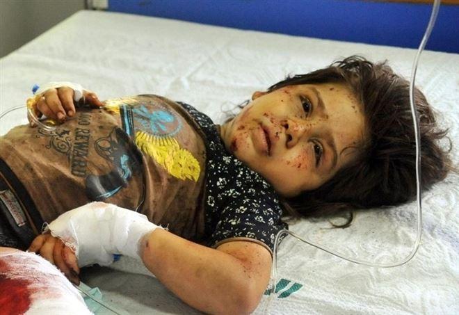 Bambina in un ospedale di Damasco (LaPresse)