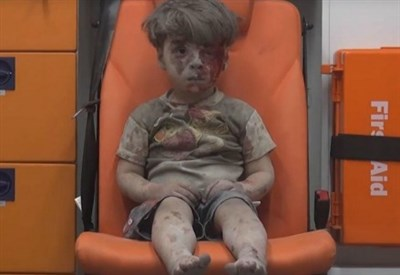 Il piccolo Omran Daqneesh (Foto dal web)