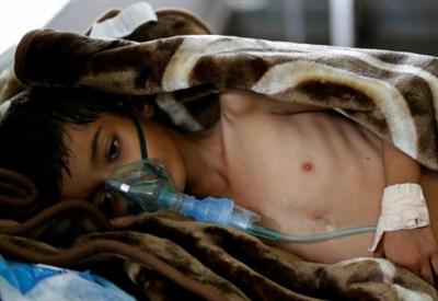 Un bambino denutrito in Yemen (LaPresse)