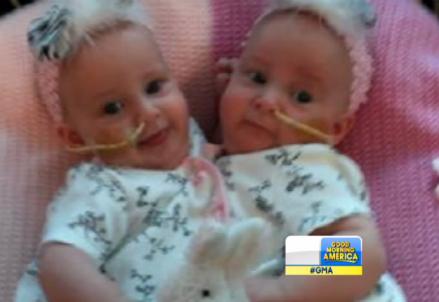 Le due gemelline siamesi prima della separazione, foto dal web
