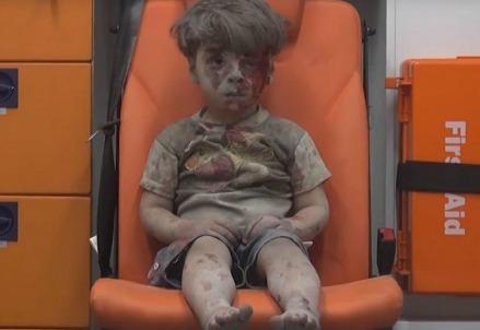 Il piccolo Omran Daqneesh, salvato dalle macerie di Aleppo (Foto dal web)