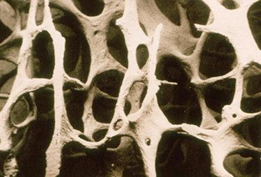 osteoporosiR375_19ott09.jpg